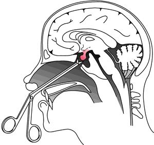 Transsphenoidal
